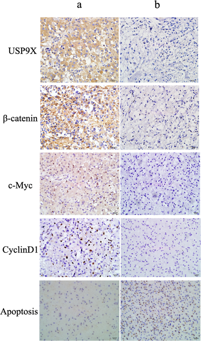 Representative immunohistochemical staining for USP9X, β-catenin, c-Myc and cyclinD1 in high grade glioma tissues.