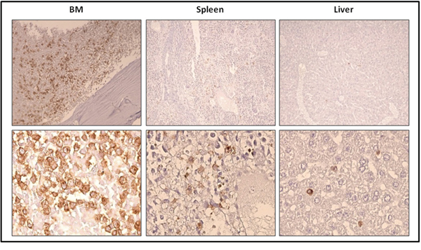 Localization of previously xenotransplanted ROSAKIT D816V-Gluc cells in mice BM using IHC detection of hCD45 after secondary transplantation.