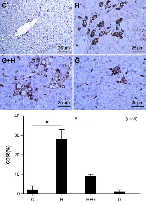 Effect of glycine treatment on macrophage infiltration.