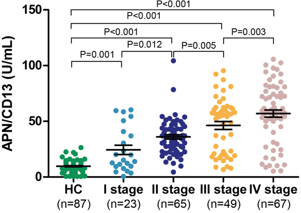 Serum APN/CD13 levels in patients with pancreatic cancer of different TNM stages vs. healthy controls.