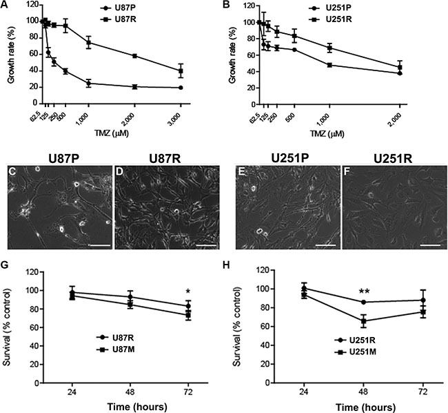 Metformin reduces temozolomide (TMZ) resistant glioblastoma cells.