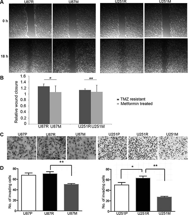 Metformin inhibits migration and growth of TMZ-resistant glioblastoma cells.