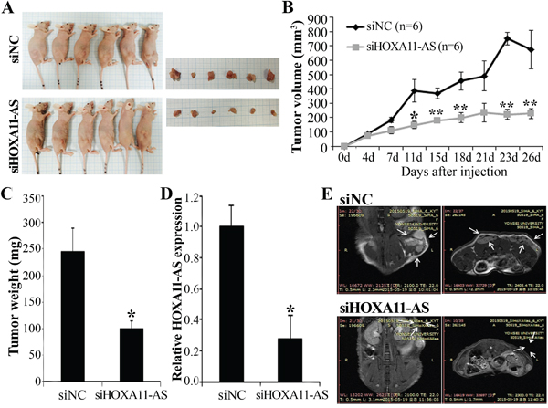 Effect of HOXA11-AS on tumor growth in vivo.