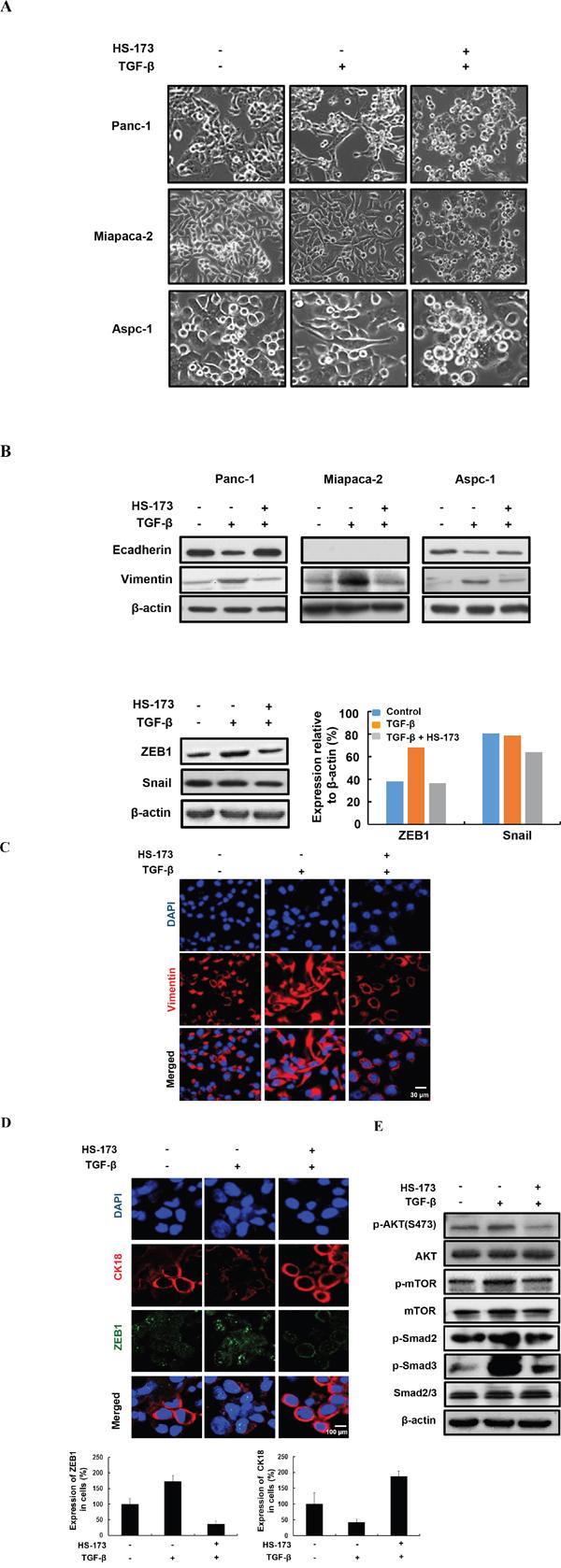HS-173 inhibited TGF-β-induced EMT in vitro.