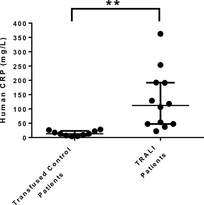 CRP levels are increased in human TRALI patients.