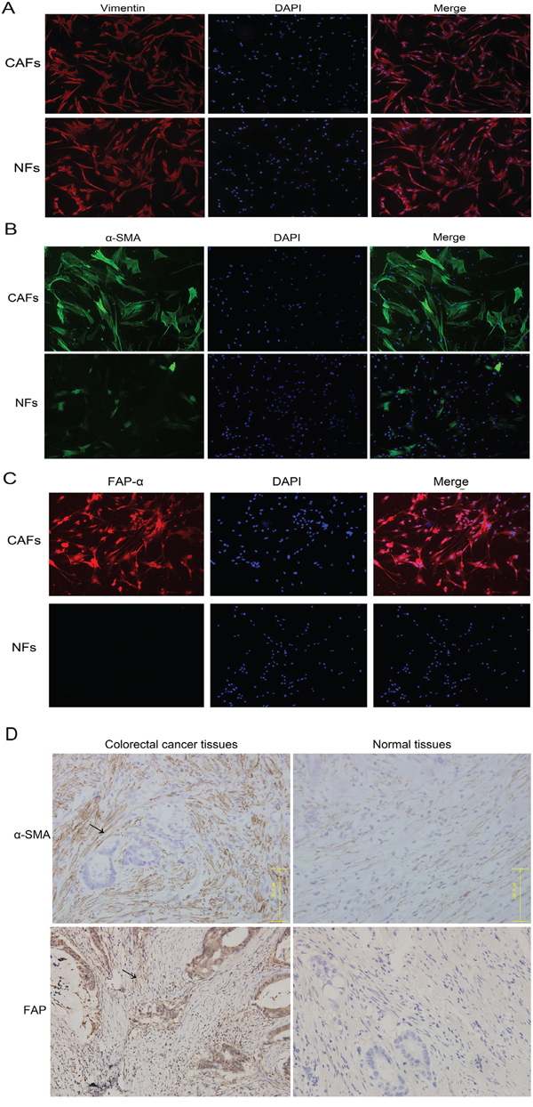 CAF and NF distinction and identification and immunohistochemistry was used to locate the positions of CAFs/NFs in colorectal cancer and normal tissues.
