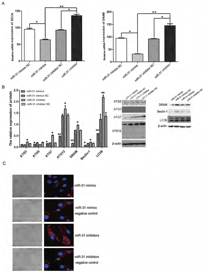 Up- or down-regulation of miR-31 in CAFs inhibited and promoted, respectively, the expression of autophagy-related genes at both the protein and RNA level.