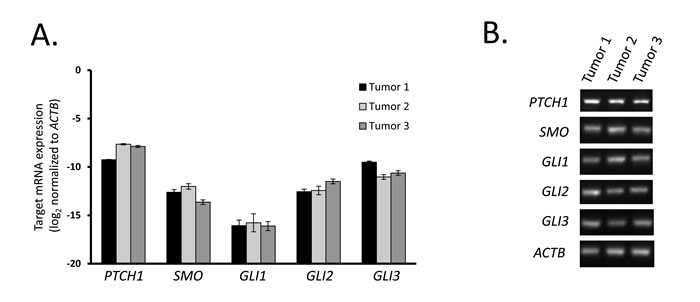 Tumor tissues from human GIST express Hedgehog signaling components.