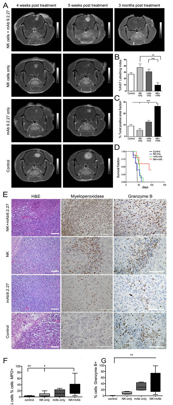 Combination NK+mAb9.2.27 treatment ablates tumor growth, prolongs survival and presented a tropism for cytotoxic cells in combination treated in U87MG bearing rats.