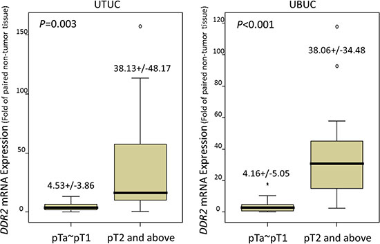 Quantitative real-time RT-PCR analysis discovers that DDR2 mRNA is significantly overexpressed in urinary tract urothelial carcinomas (UTUCs, left panel) and urinary bladder urothelial carcinomas (UBUCs, right panel) with higher primary tumor statuses.