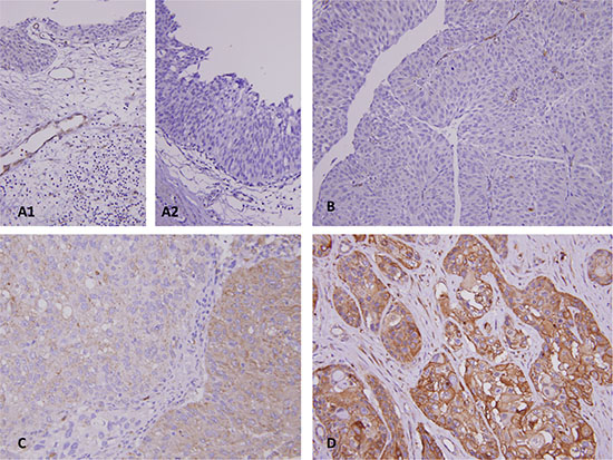 Representative lesions for DDR2 immunostaining reveals DDR2 is undetected in normal urothelium.