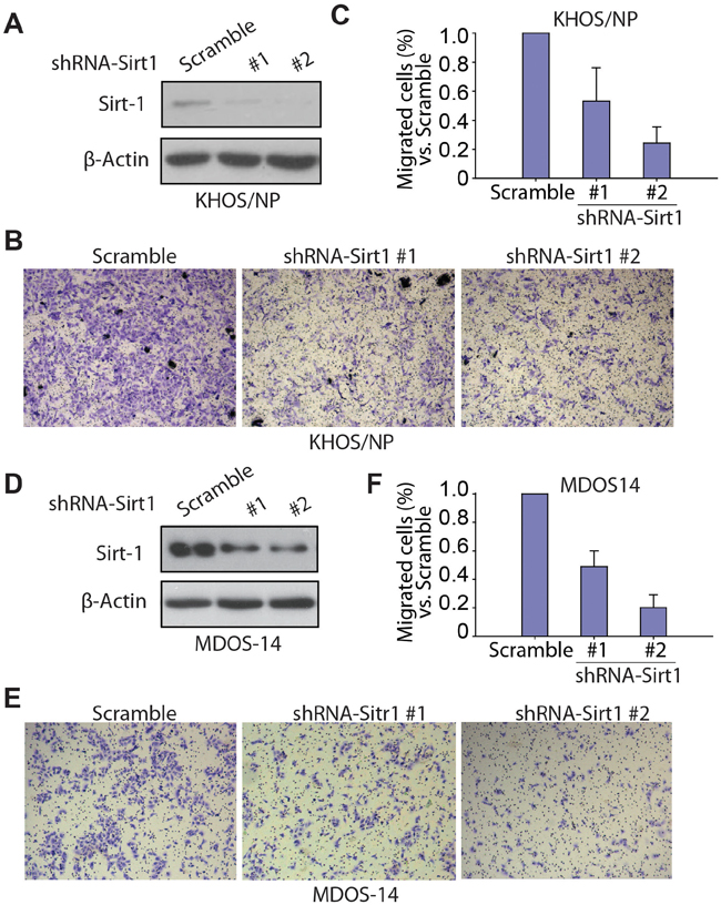 Knockdown of SIRT1 inhibits the migration ability of osteosarcoma cells in vitro.