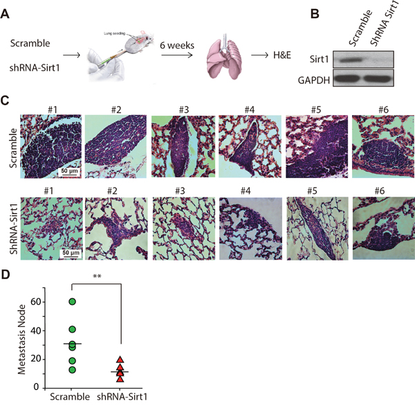 Knockdown of SIRT1 reduces lung metastasis of osteosarcoma cells in vivo.