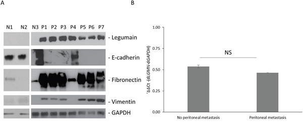 Legumain is overexpressed in gastric cancer patients with peritoneal metastasis.
