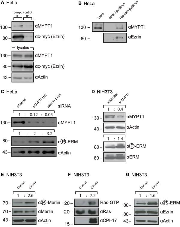 MYPT1 regulates ERM phosphorylation. (