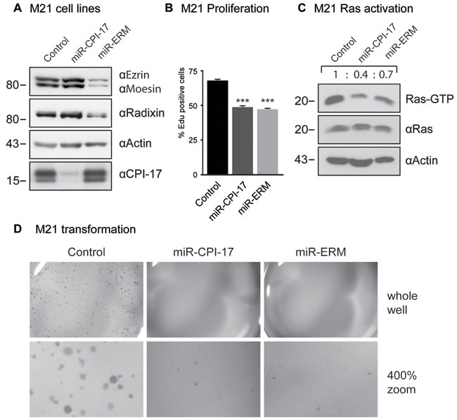 CPI-17 drives oncogenesis in patient-derived M21 melanoma cells. (