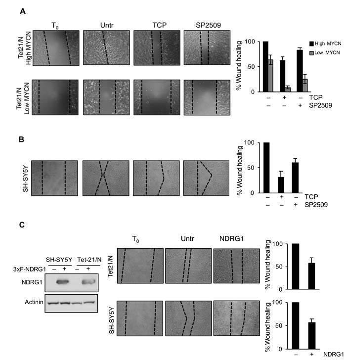 LSD1 inhibition reduces migration of Neurobastoma cells.