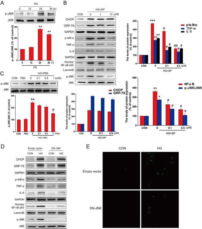 PBA administration inhibited the HG-induced p-JNK activation which was required for HG-induced inflammatory protein expression.