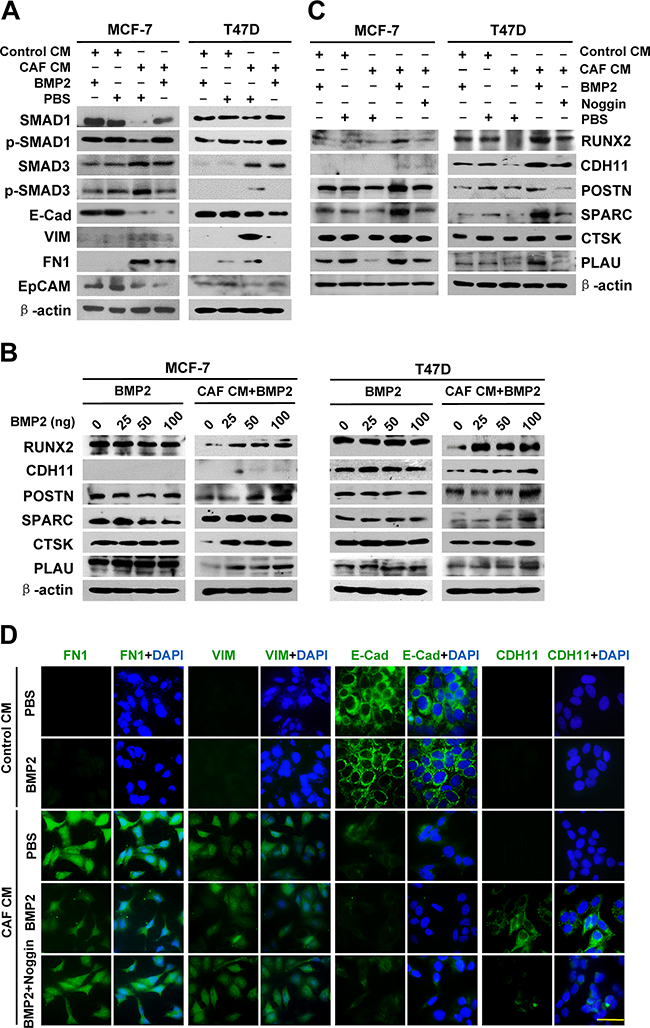 The co-expression of BRGs in breast cancer cells is derived from EMT that has undergone BMP2 induction.