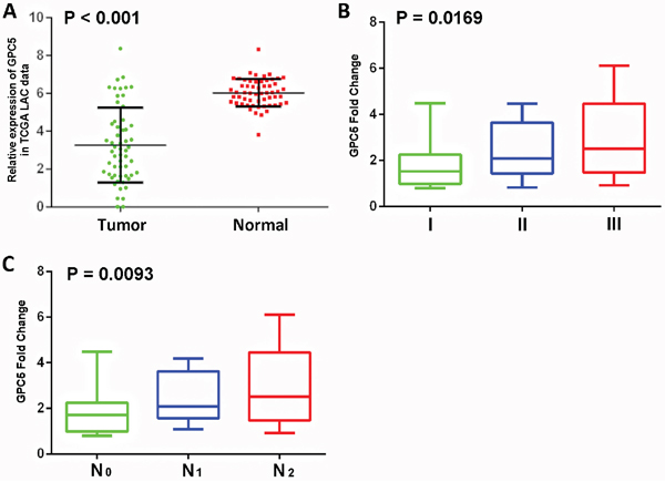 Expression levels of GPC5 in lung adenocarcinoma (LAC) and its clinical significance.