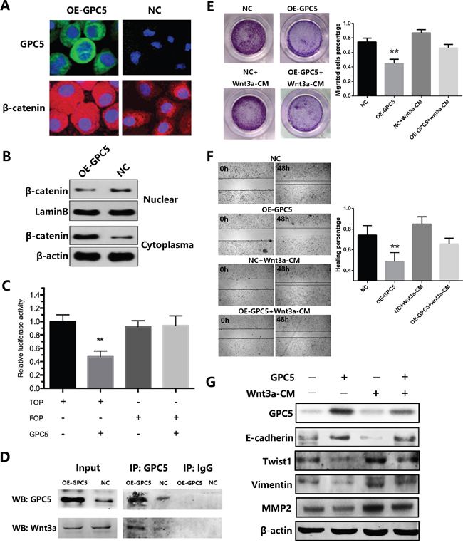 GPC5 inhibits Wnt/β-catenin signal pathway via competitively binding to Wnt3a.