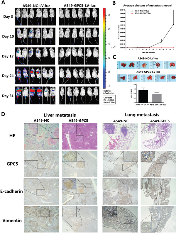 GPC5 inhibits lung adenocarcinoma and Epithelial-Mesenchymal Transition (EMT) in NOD-SCID mice model.