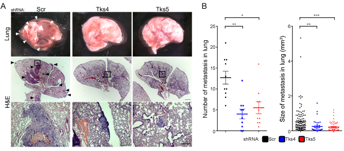 Tks adaptor proteins are required for melanoma metastasis