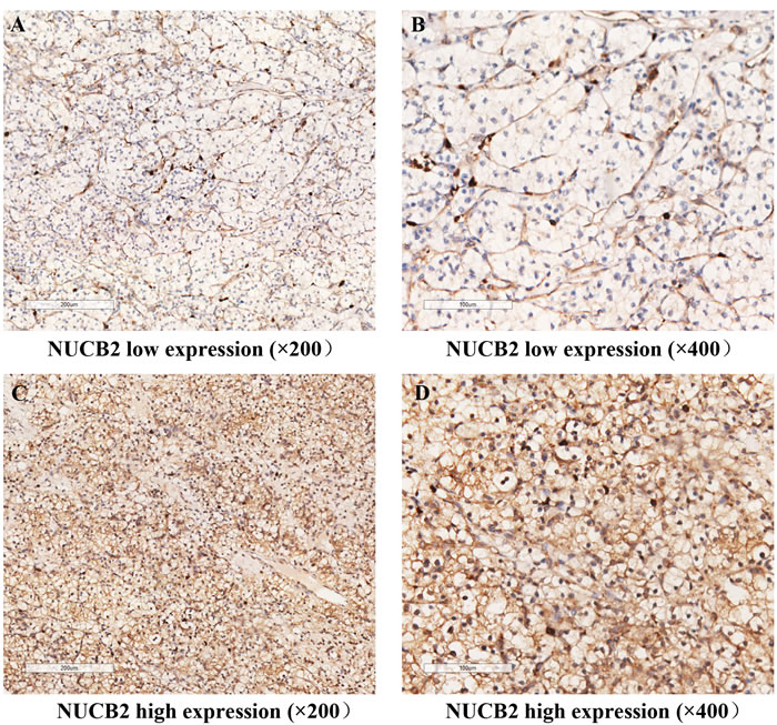 NUCB2 expression in clear-cell renal cell carcinoma (ccRCC) tissues.
