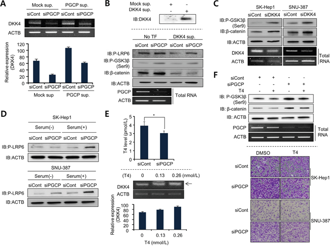 PGCP transcriptionally modulates DKK4 expression in a T4-dependent manner.