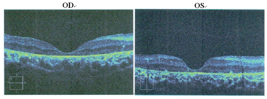 Patient II:1. OCT of the retinal pigment epithelium.