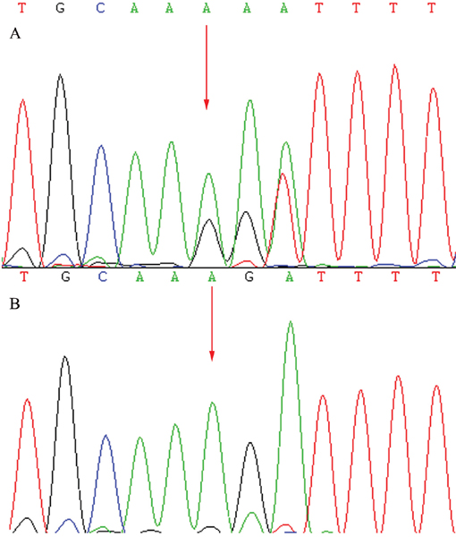 Sequencing results of the CRB1 gene: Sequence analysis showed a heterozygous mutation c.138delA (p.Asp47IlefsX24) in exon 2.