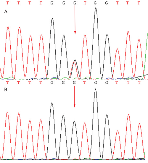 Sequencing results of the CRB1 gene: Sequence analysis showed a heterozygous mutation c.1841G>T (p.Gly614Val) transversion in exon 6.