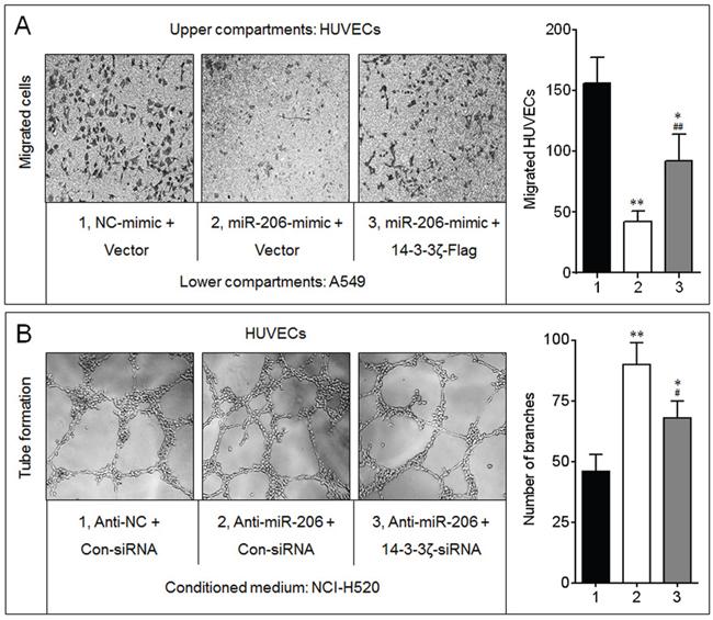 14-3-3ζ was involved in the miR-206-inhibited angiogenesis.