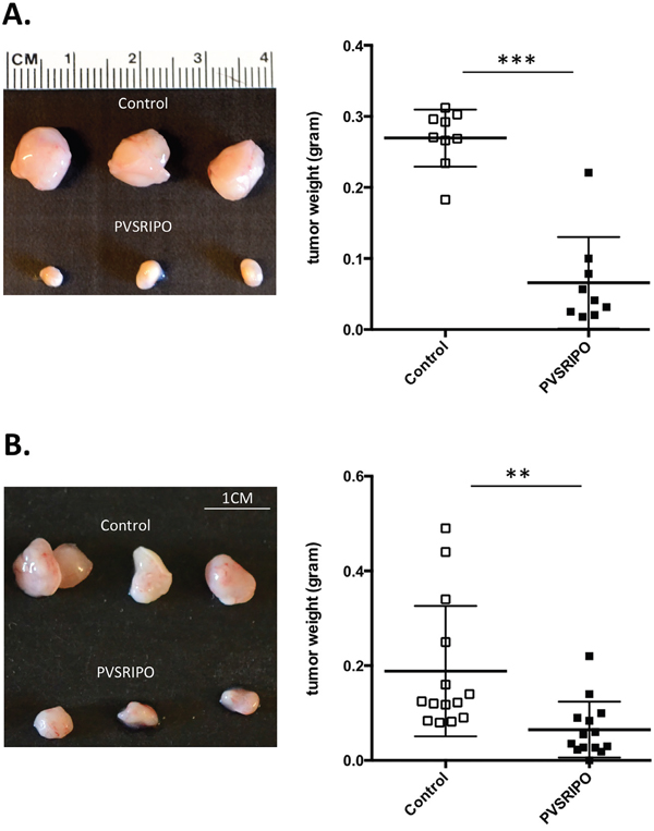 Single intratumoral administration of PVSRIPO results in tumor regression in SUM149 and DU145 xenografts.