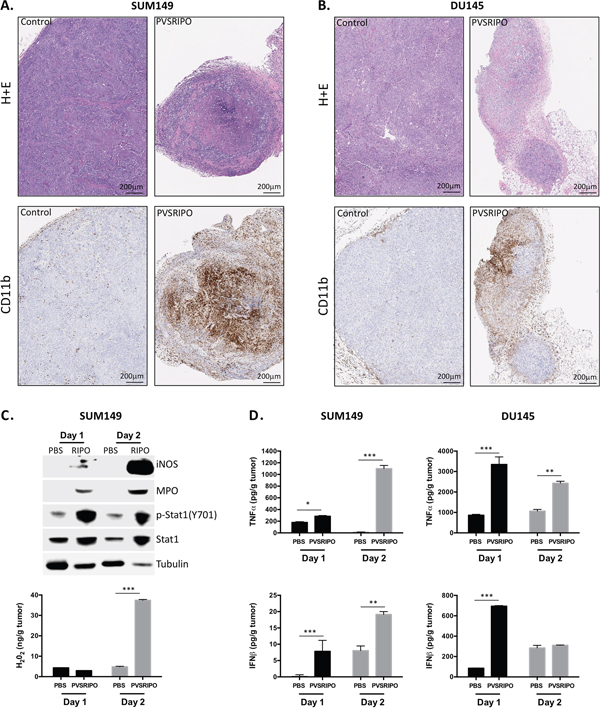 Innate immune cell infiltration after PVSRIPO is associated with signs of cell-mediated tumor cytotoxicity.