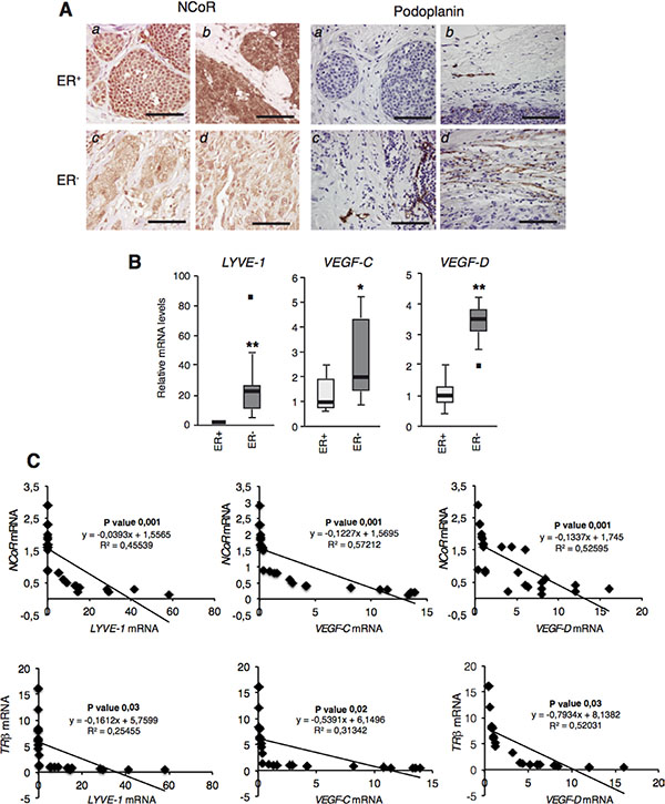 NCoR and TRβ levels correlate negatively with lymphangiogenic gene expresion in human breast tumors.