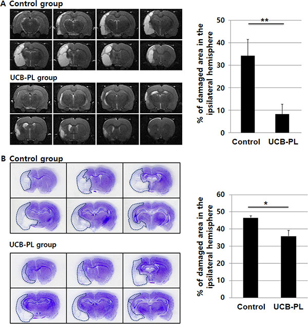 UCB-PL administration reduced brain tissue damage caused by MCAO injury.