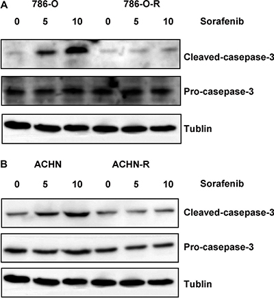 Western blot assessing cleaved caspase-3 and pro-caspase-3 showed that both sorafenib-resistant and parental cells exhibited similar apoptosis rates at baseline (no sorafenib treatment control); however, after treatment with sorafenib, sorafenib-resistant cells showed lower cleaved caspase-3 levels compared with parental cells.