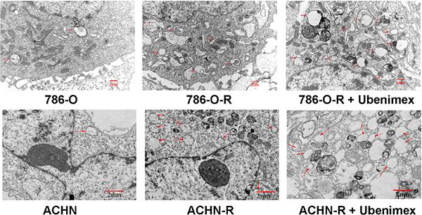 Electron microscopy of ACHN, ACHN-R, and ACHN-R+ ubenimex.