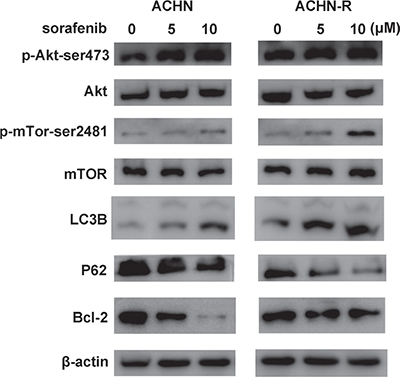 Similar changes in Western blot were found for another RCC cell line, ACHN.