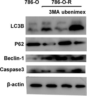 786-O, 786-O-R, 786-O-R + 3MA, 786-O-R + ubenimex were selected for Western blot.