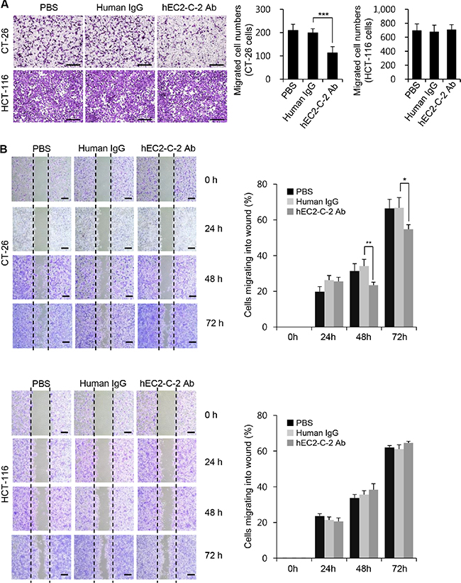 Effects of the humanized anti-TM4SF5 monoclonal antibody on the migration of colon cancer cells.