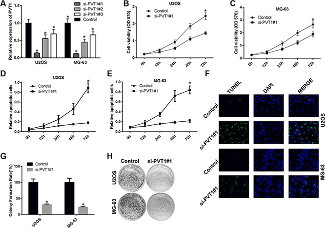 Silencing PVT1 by siRNA inhibits proliferation and promotes apoptosis in osteosarcoma cells.