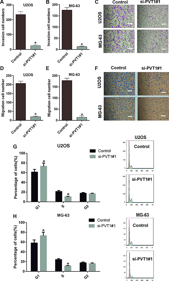 Silencing PVT1 by siRNA inhibits migration and invasion and induces cell cycle arrest in osteosarcoma cells.