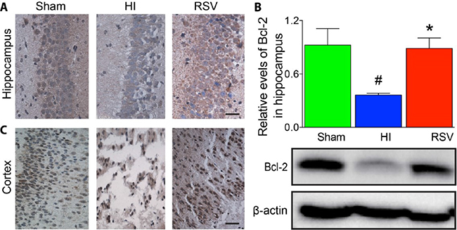 Bcl-2 immunohistochemistry and Western blots.