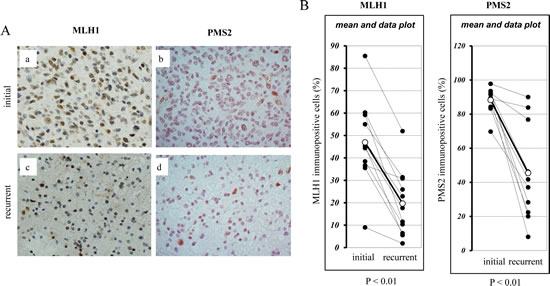 Immunohistochemical analysis of the expression of MLH1 and PMS2 in recurrent human glioblastomas during TMZ treatment.