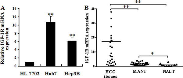 IGF-1R mRNA overexpression in HCC cells and human HCC tissues.