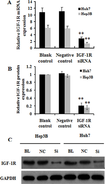 Effect of IGF-1R knockdown by RNAi on IGF-1R expression in Huh7 and Hep3B cells.