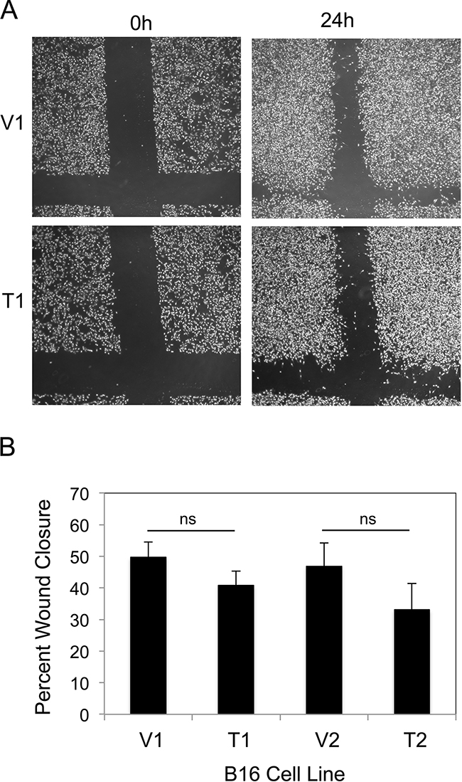 TWEAK overexpression does not alter B16 cell migration.
