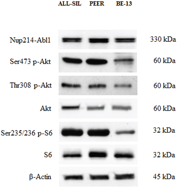 Expression and phosphorylation status of Akt and of the mTORC1 downstream target S6 in NUP214-ABL1 positive T-ALL cell lines.